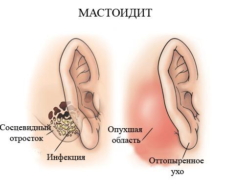 pierderea în greutate bile în spatele urechilor